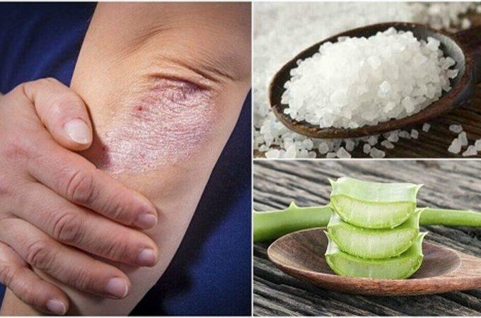 Remedii naturale pentru pielea ta